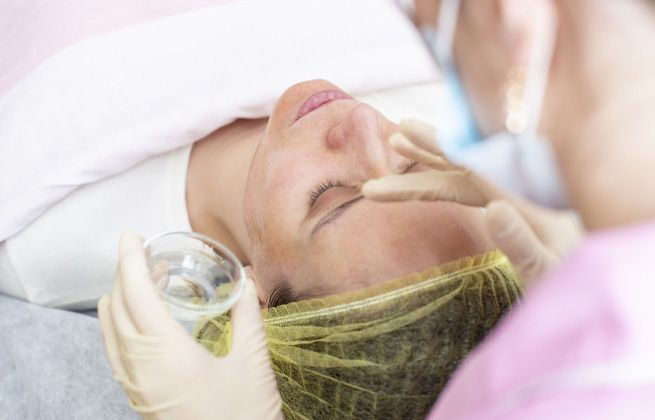 Chemical Peel Treatments